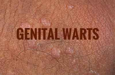 warts treatment guidelines