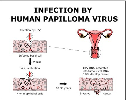 which symptom applies to human papillomavirus hpv)