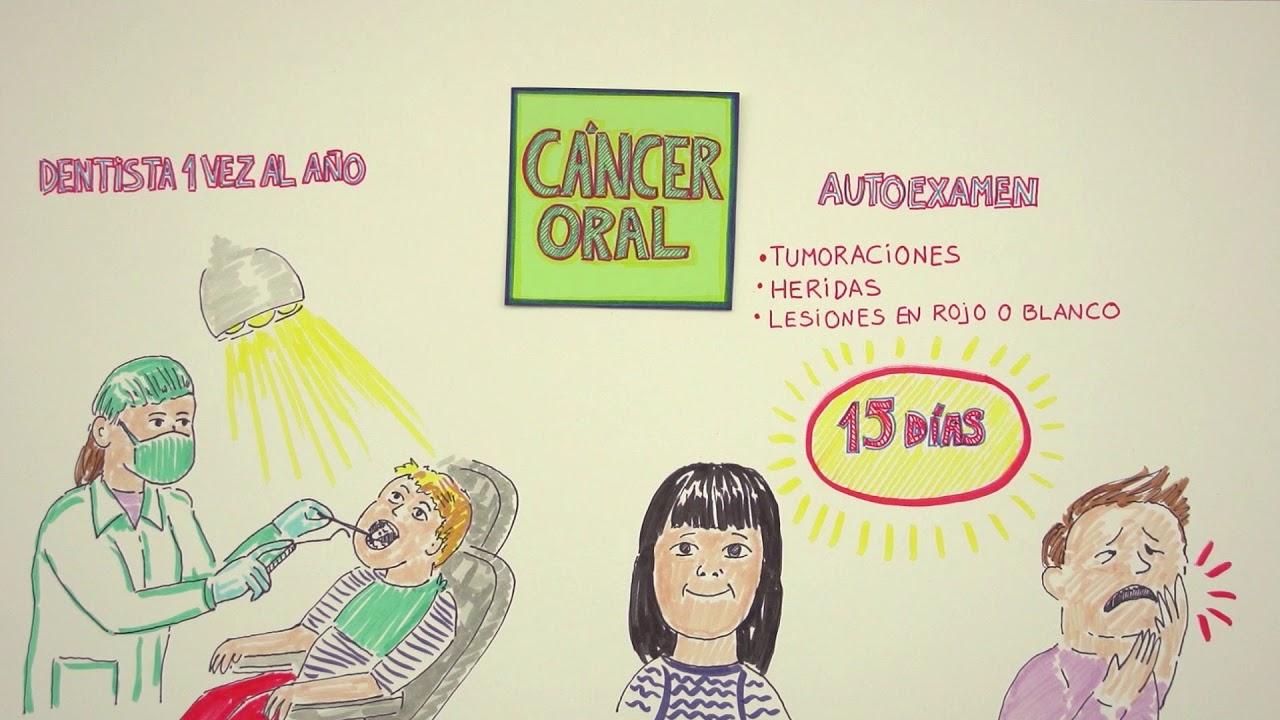 cancer colon stadiul 4 speranta de viata