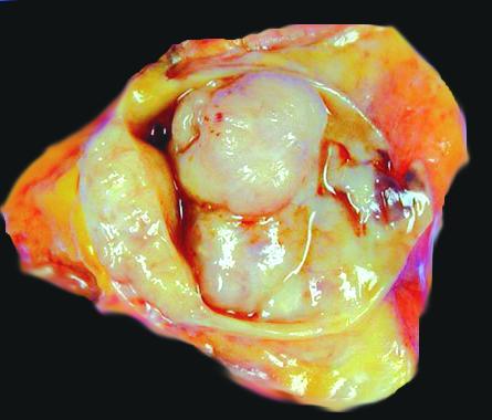 O papilomavirus humano e o principal causador do cancer, #cancercervical