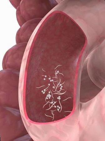 oxiuros tratamiento naturales vierme medicament pe o tabletă