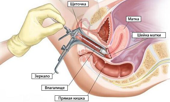 cum să luați frotiu în ginecologie