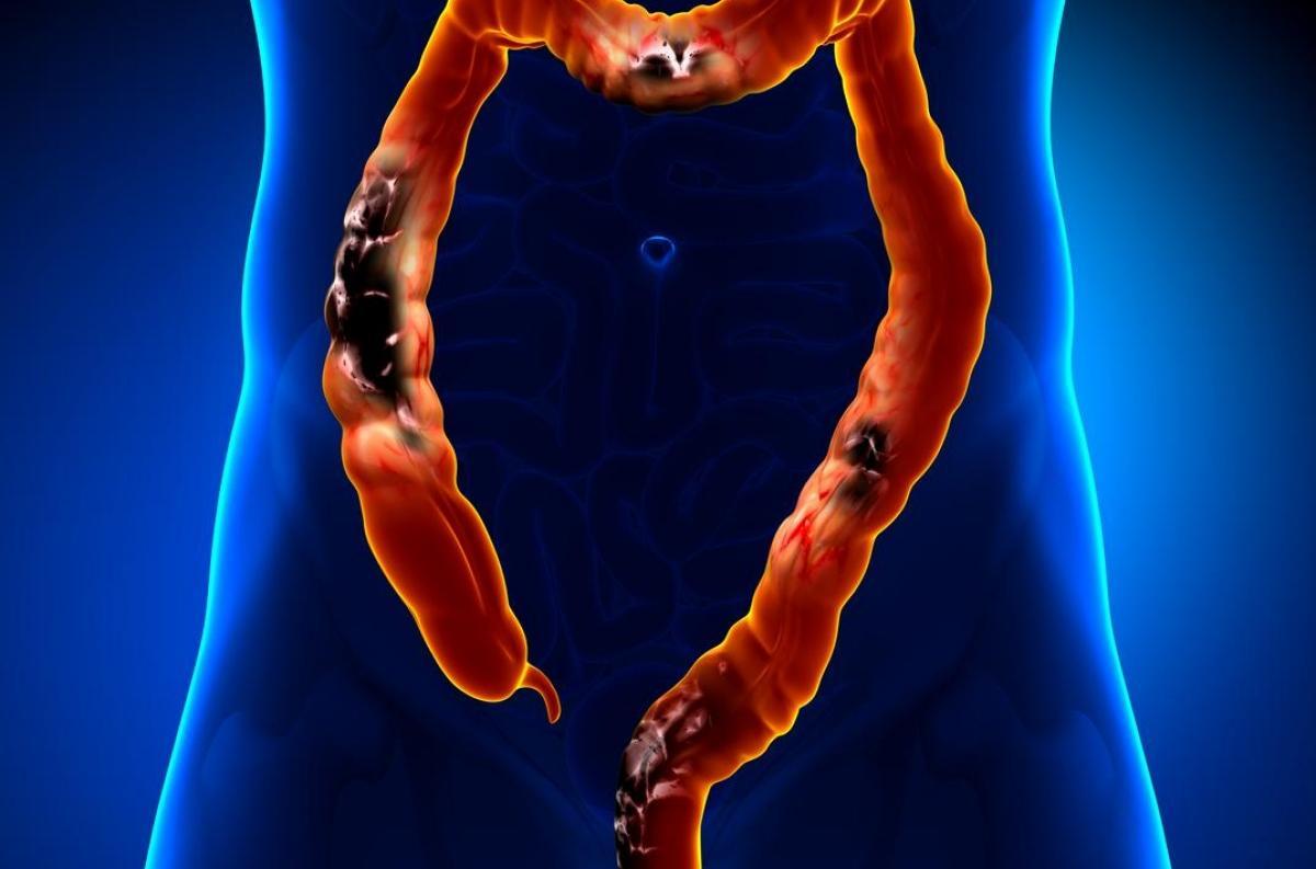 Adenocarcinom de prostată de prostată în mintea acasă - Cancer colorectal stade 4 esperance de vie