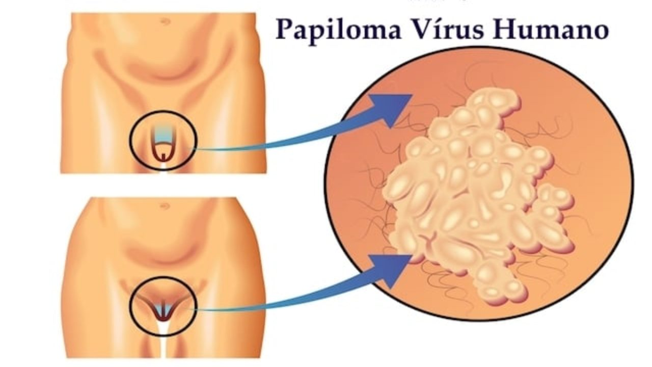 hpv prevention who