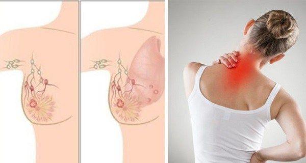 Mergi la doctor dacă ai aceste simptome: semnele prezenţei cancerului în organism