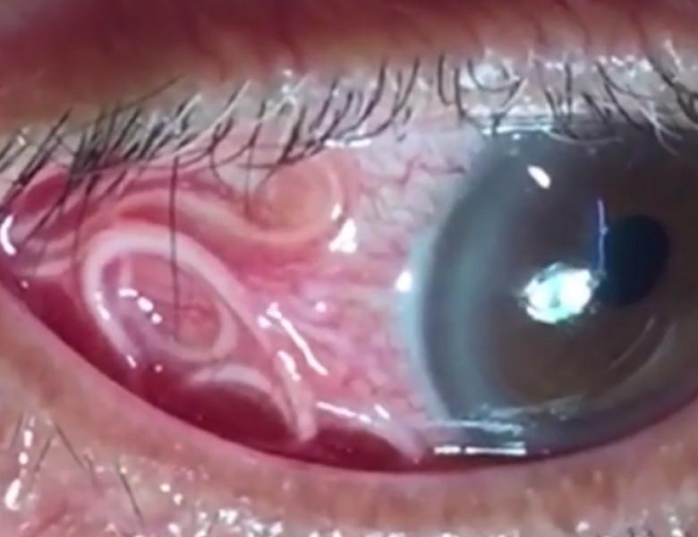 simptome de infecție cu vierme