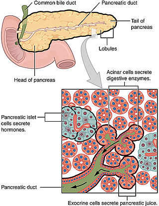 Cancerul Pancreatic, Cancer endocrine pancreatic