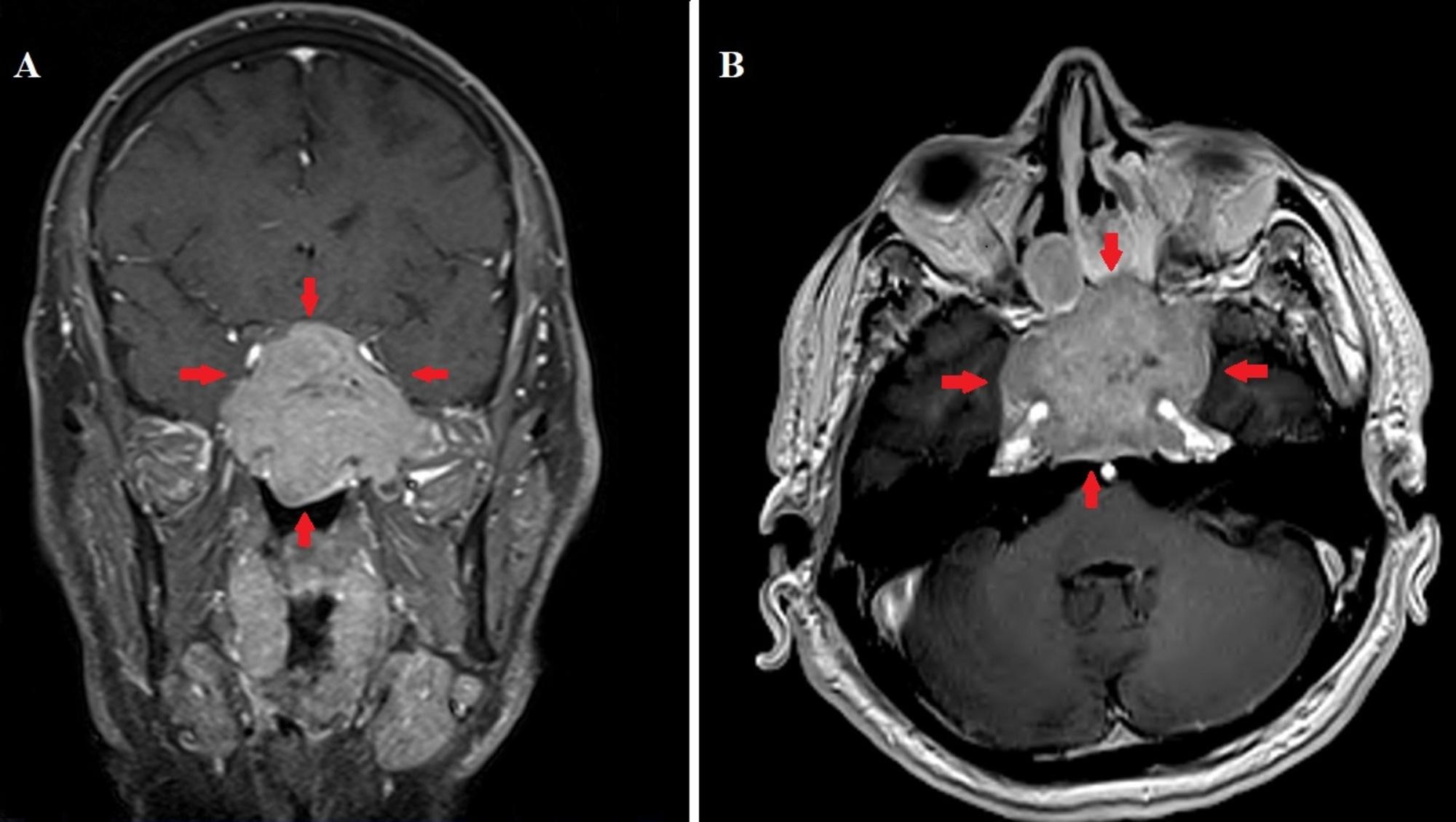 Neuroendocrine cancer with carcinoid tumors. METASTATIC CARCINOID TUMOR- ATYPICAL PRESENTATION