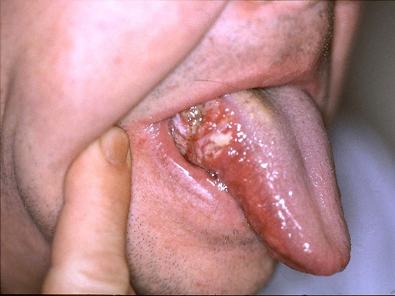 hpv and throat issues