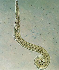 Enterobius vermicularis female morphology. Helminturi întunecate în materii fecale
