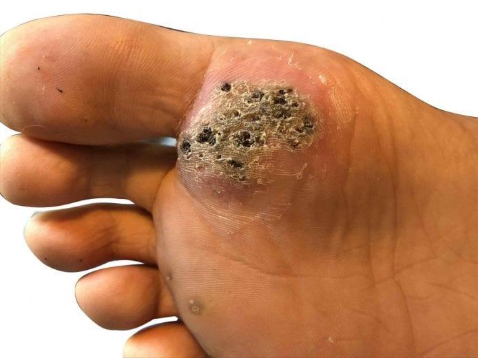papilloma foot wart