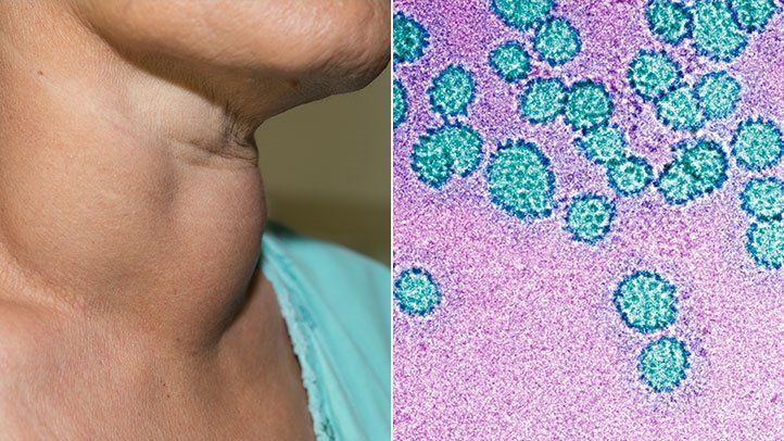 hpv virus how do you get it