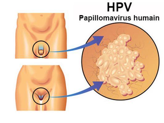 human papillomavirus chez l homme