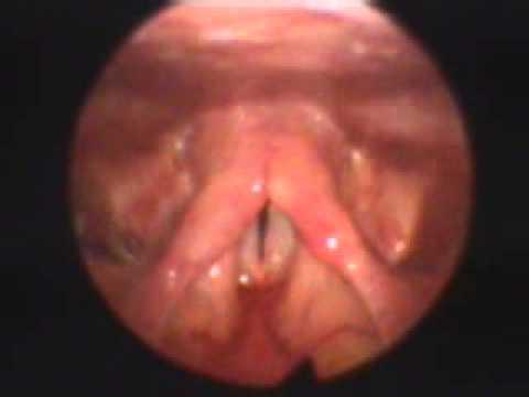 Virus del papiloma humano en la boca como se contagia, Cancer Uterino