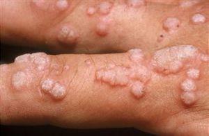 papiloma virus en hombres