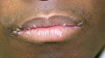 Squamous papilloma of lip. Papilloma pe articulație