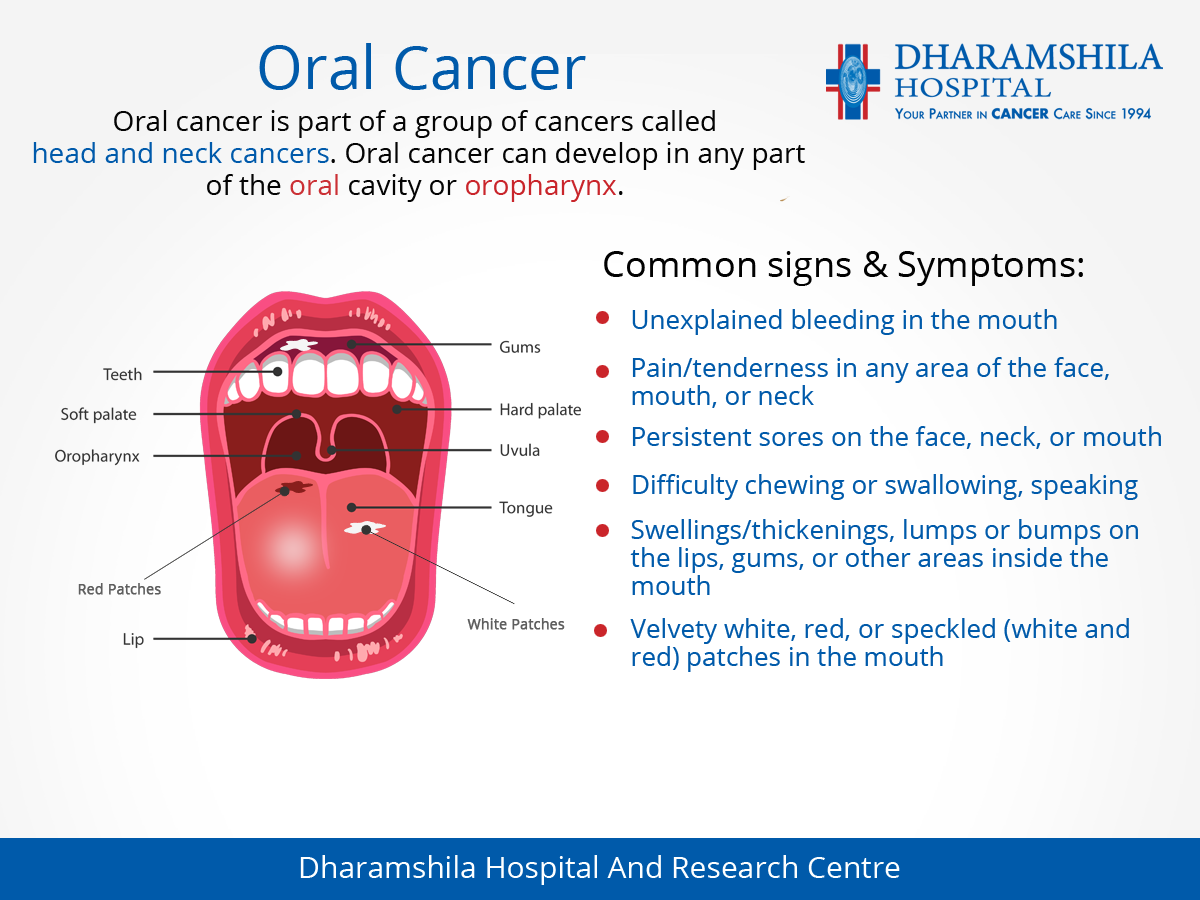 cancer bucal oms
