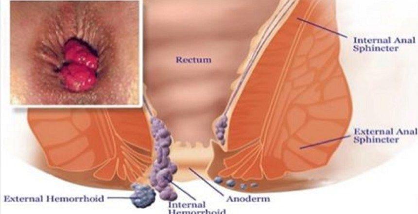 cancer colon y hemorroides)