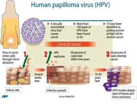 define human papillomavirus vaccino hpv quando si fa