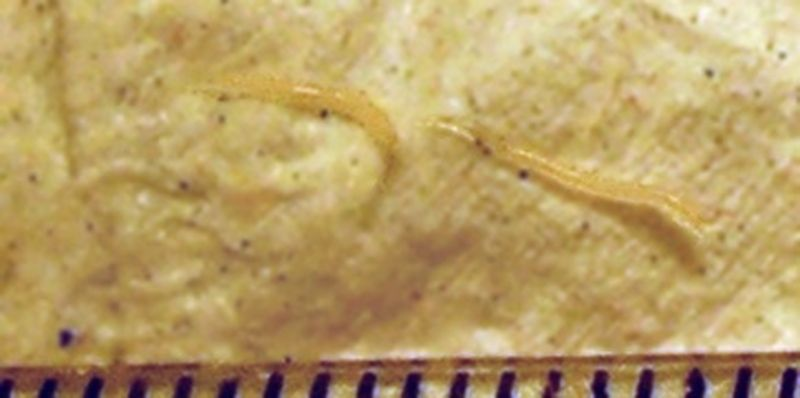 cum arată pinworms