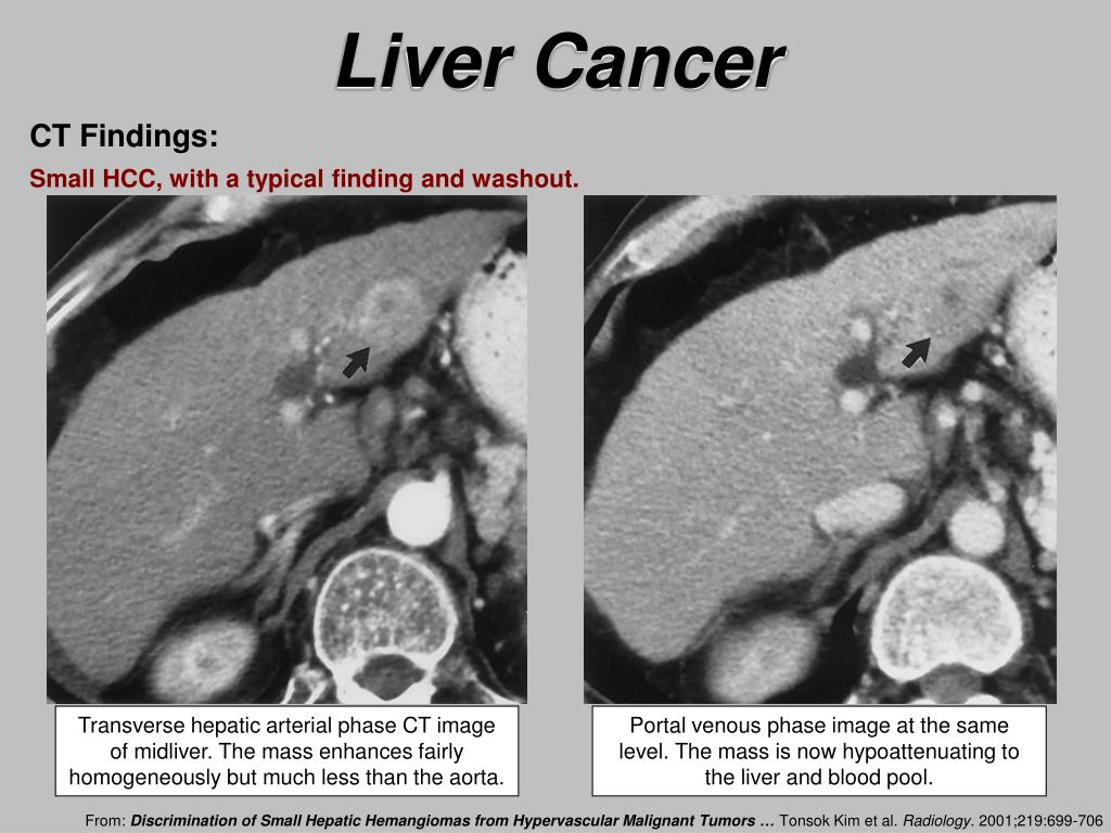 hepatic cancer perfusion