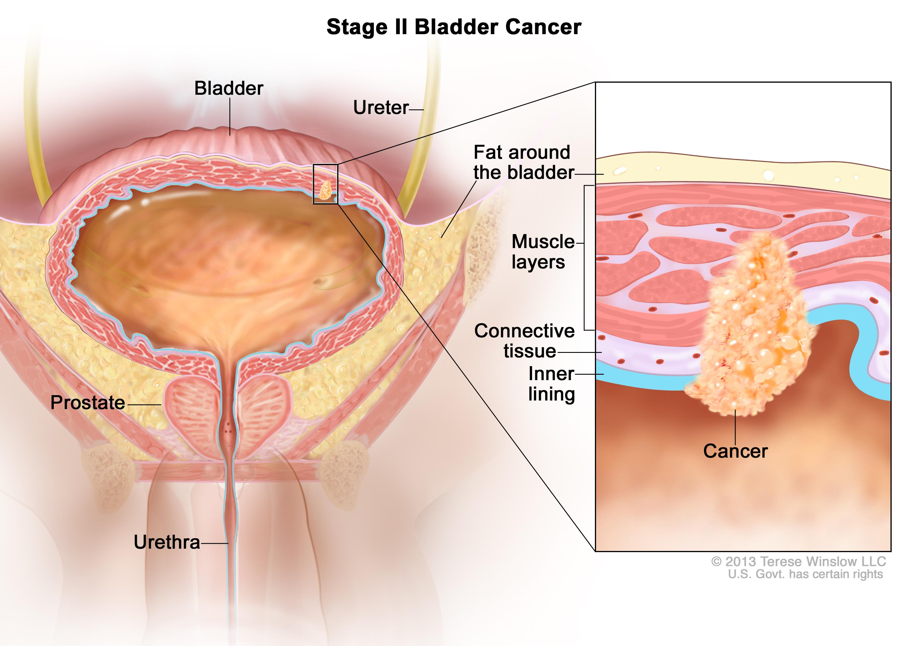 Hpv 16 and bladder cancer