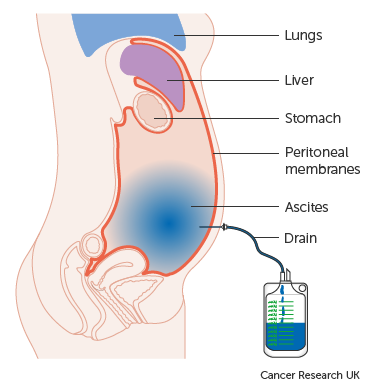 peritoneal cancer with ascites