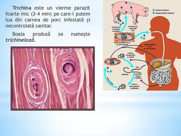 Paraziţii intestinali ne apără de bolile autoimune?