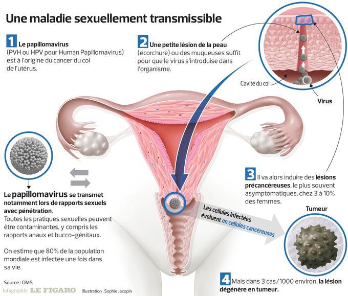 lesion papillomavirus chez l homme