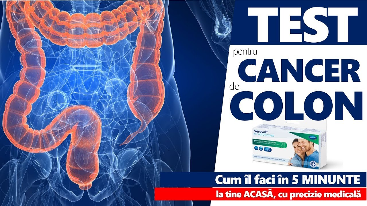 Cancerul de colon şi rect: INTERVIU cu un medic chirurg