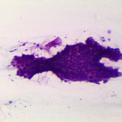 paraziti u tijelu prirodni lijek