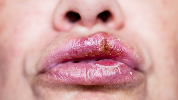 hpv herpes bucal