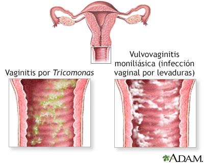 Microbiología Basica Vulvovaginitis por oxiuros tratamiento