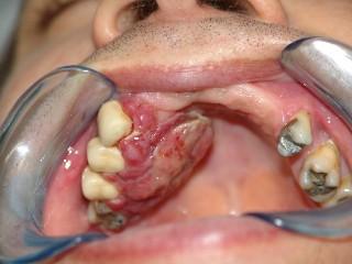 cancer bucal en cuba hpv vaccine johor bahru