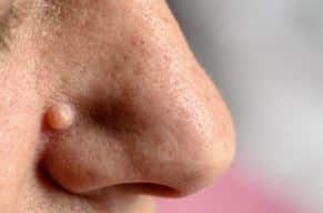 detoxifierea colonului este totul natural infecția pielii giardiei