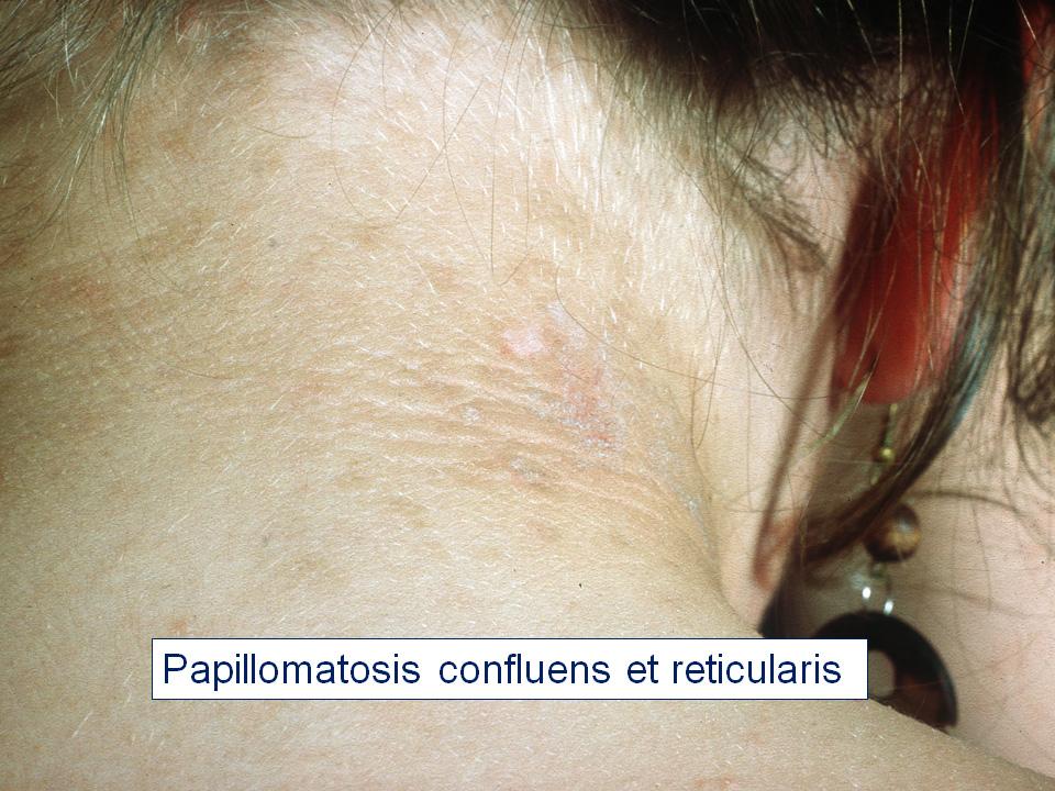 CONGRES_DERMATO_ - Papillomatosis confluens reticularis