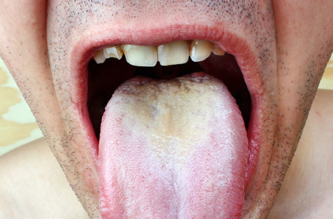 hpv in mouth signs papillomavirus souche 16