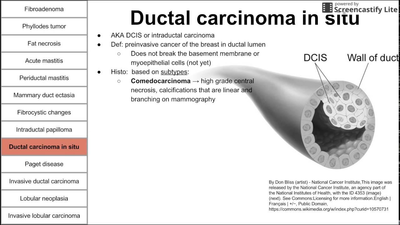 Intraductal papilloma breast tumor - transroute.ro