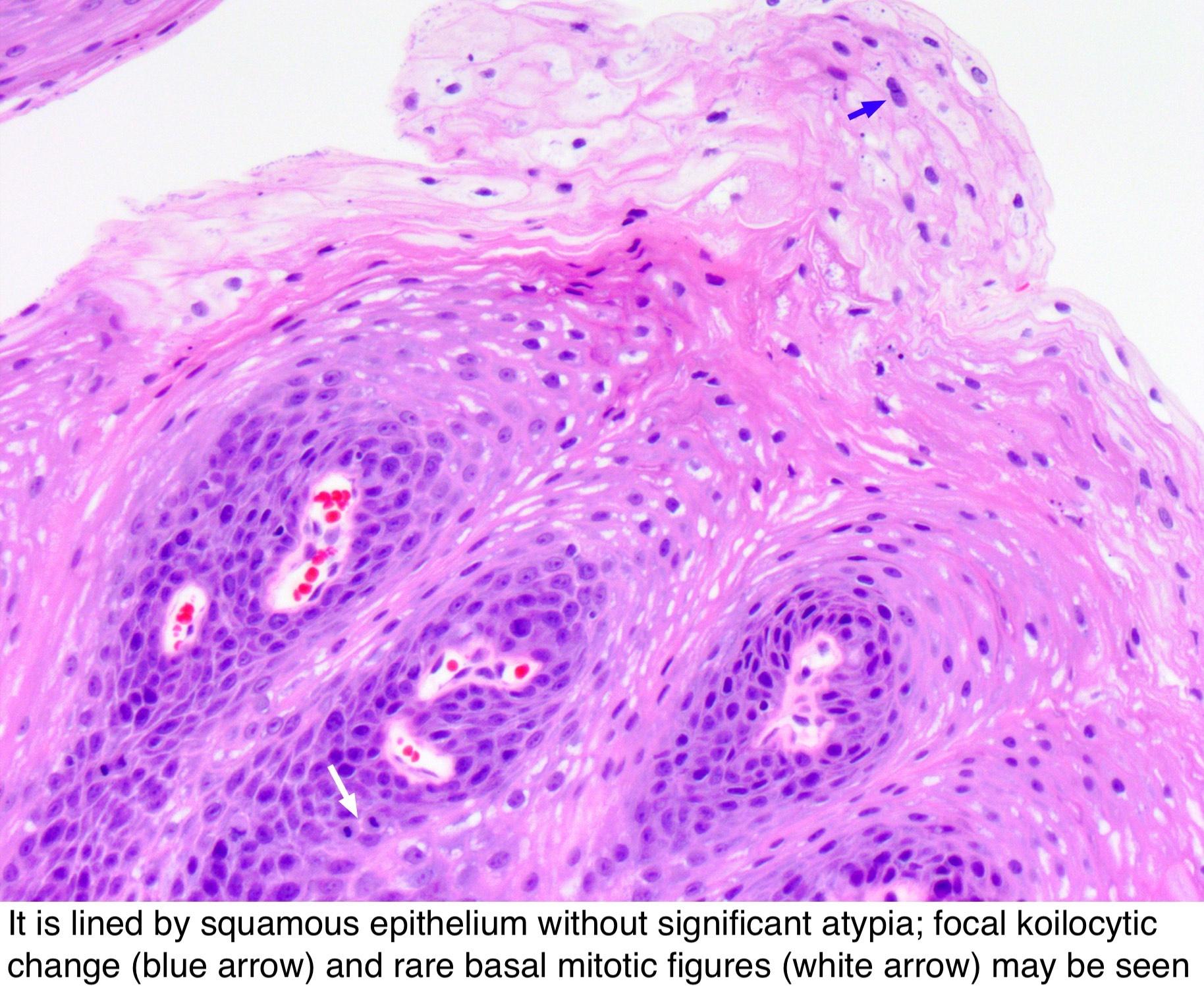 papilloma tongue pathology outlines