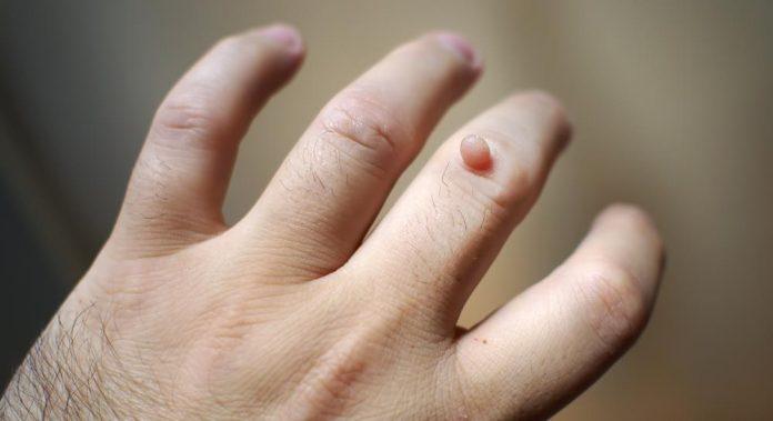hpv warzen gefahrlich simptomele parazitului giardia