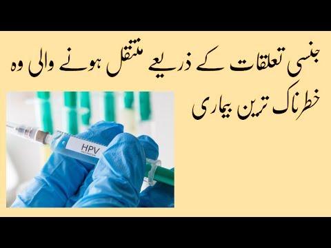 papillomas in urdu squamous papilloma tongue causes