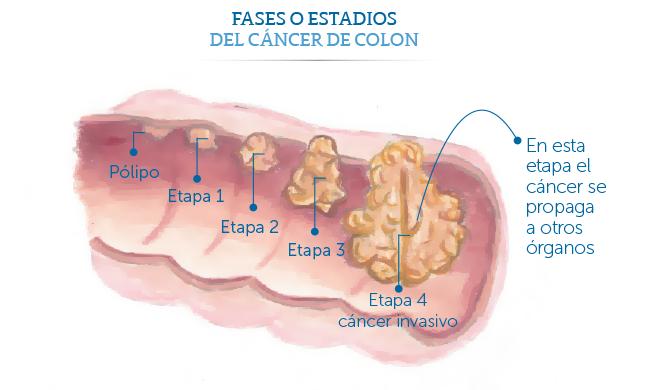 Cancer de pancreas etapa 4. Etapa 4 cancer pancreatic: Tratamentul și Outlook