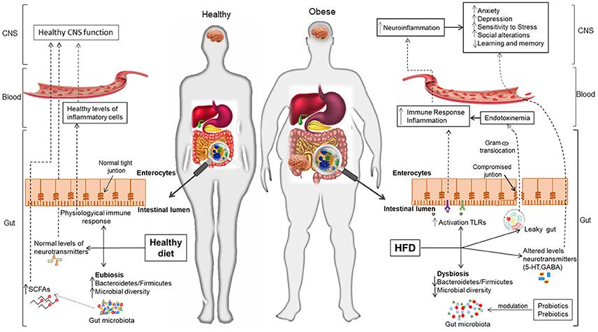 Microbiota intestinală reconfigurează frontierele cunoașterii Diabetes type 2 dysbiosis