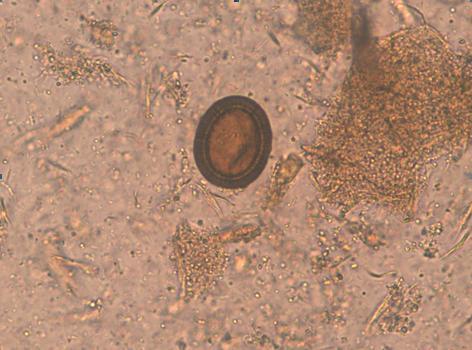 oua de helmini hpv virus zwanger