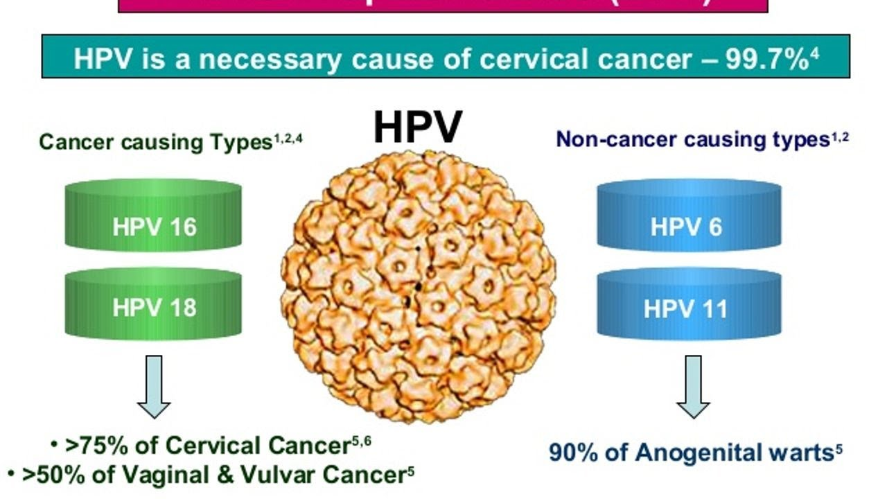 Cancer caused by hpv in males - Înțelesul
