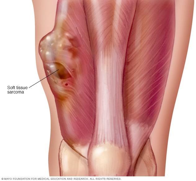 Uterine cancer lower back pain
