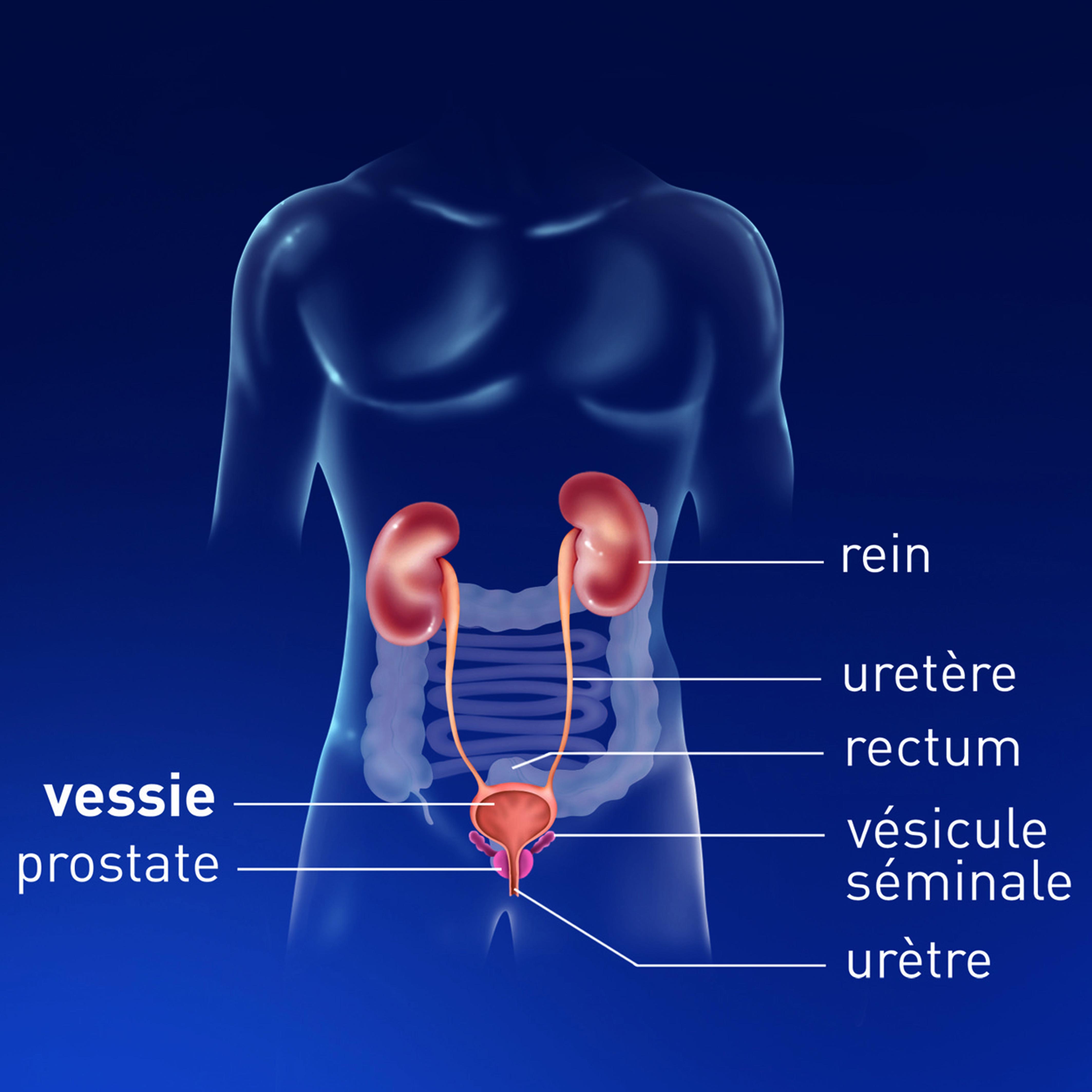 cancer prostate feminin