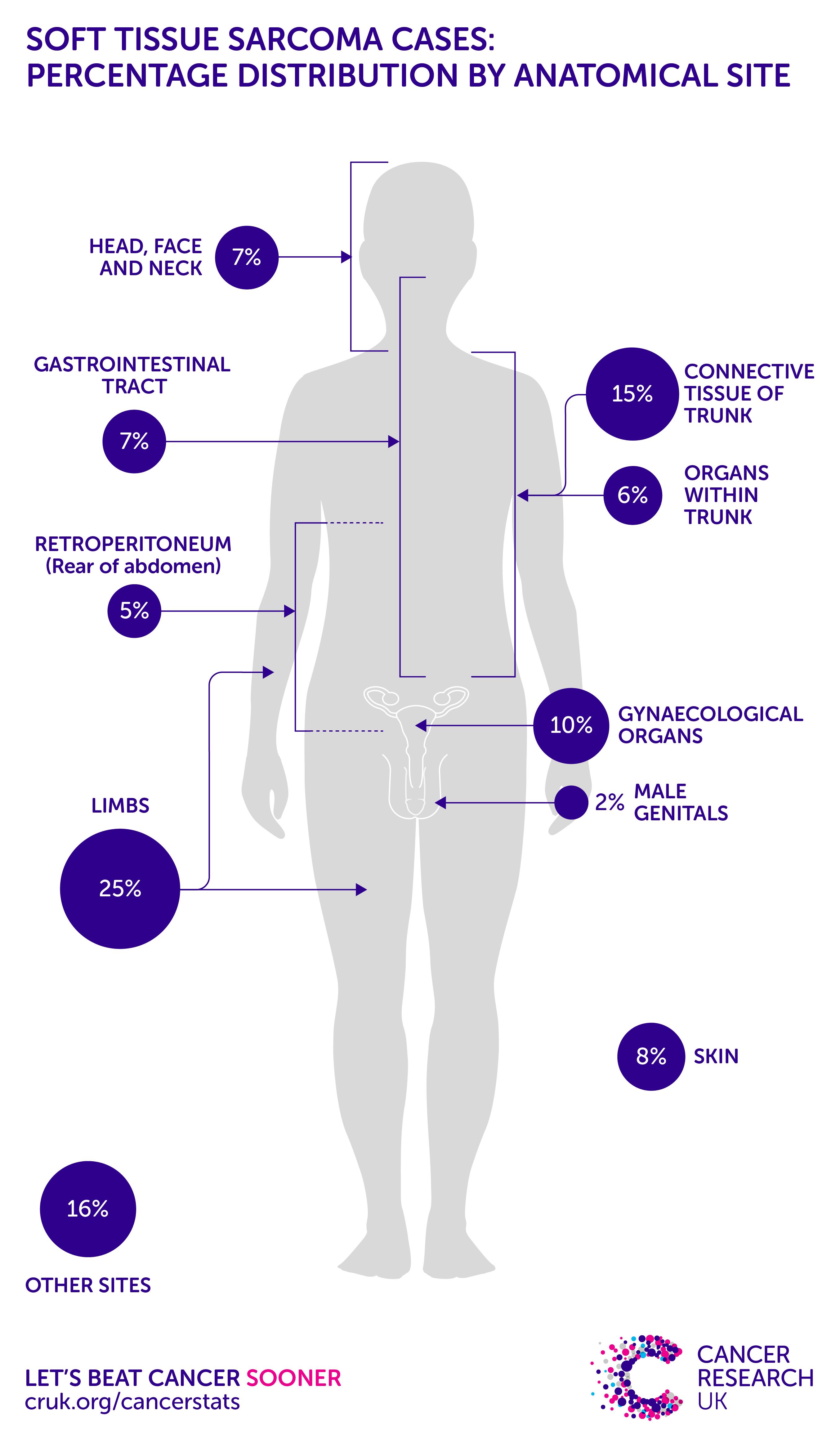 cancer sarcoma types simptome de tenioză