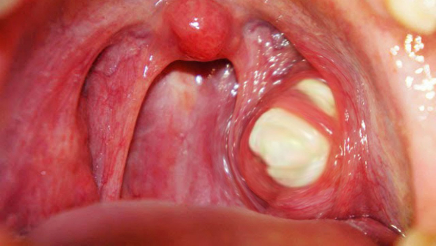 terapia del papilloma virus