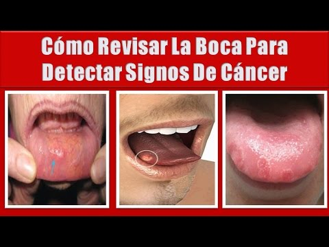 hpv high low risk cancer epidermoide bucal